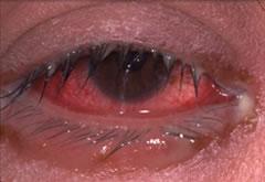 細菌性結膜炎